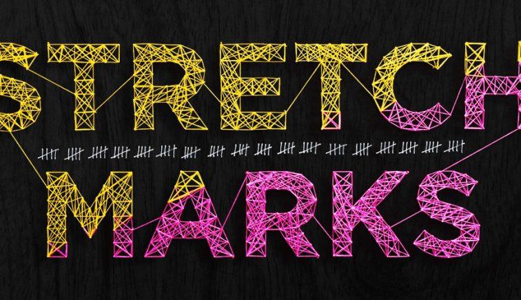 Stretch-Marks-Sermon-Series-Idea